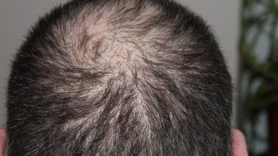 דברים שחשוב לדעת על נשירת שיער