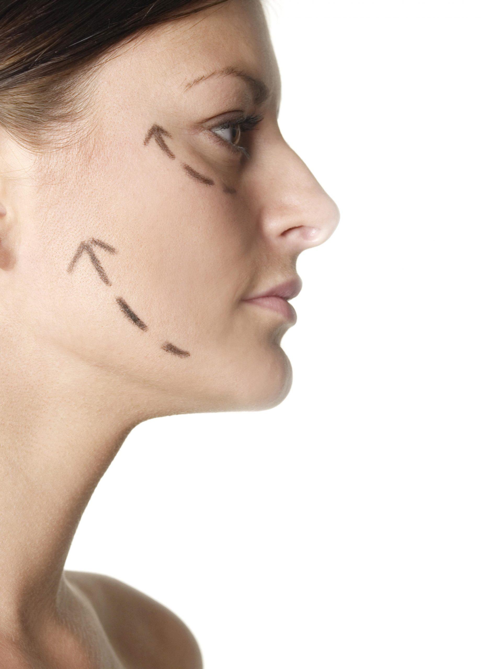 תהליך טיפול בצלוליט