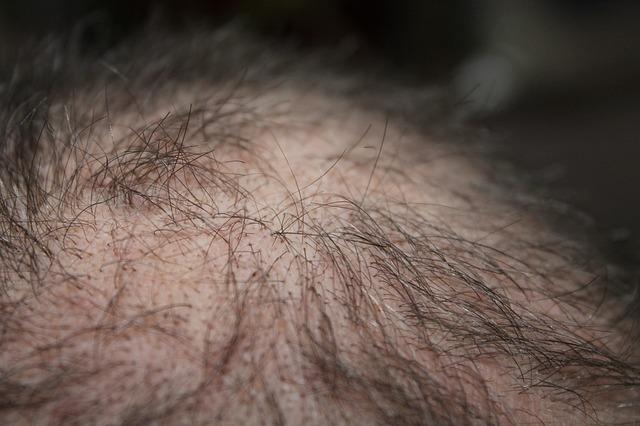 מחיר השתלת שיער בטורקיה – כמה זה יכול לעלות לנו?