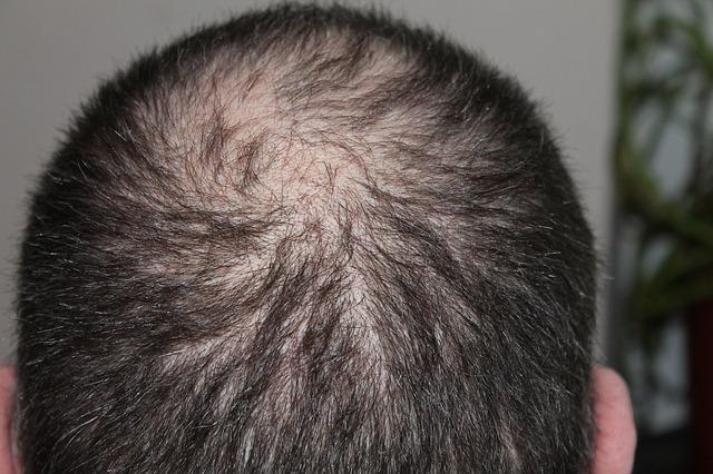 השתלת שיער בישראל